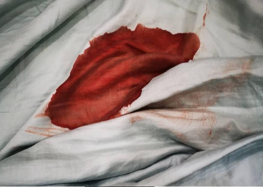 flux menstruel